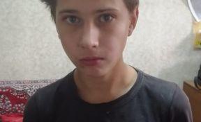 В Кузбассе без вести пропал 15-летний подросток со шрамом